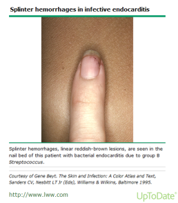 splinter-hemmorhages