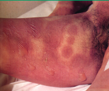 Atypical targetoid apperance of rash in SJS/TEN