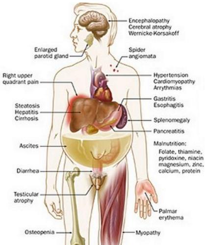 Hepatorenal Syndrome Diagram