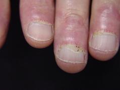 Cuticular overgrowth, periungal erythema, dilated capillary loops