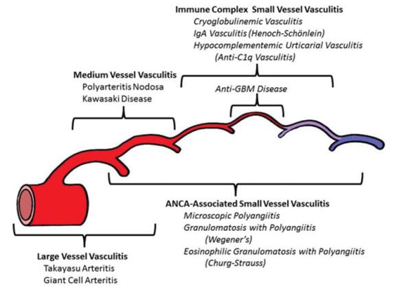 vasculitis.png