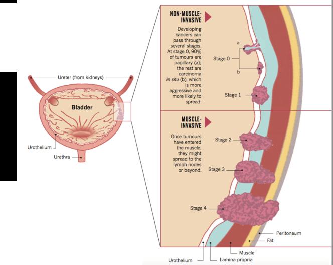Staging bladder cancer