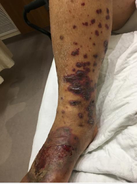LCV skin example