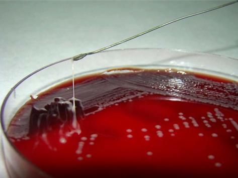 Fig-1-String-test-result-for-Klebsiella-pneumoniae-Stretching-of-K-pneumoniae.png