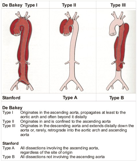 classification-dissection-diagnosis-stanford-typeiii-original